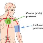 Ошибки при измерении артериального давления