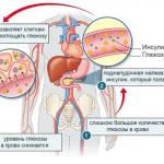 Как понять, что инсулин повышен