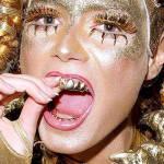 Сверкающие рты Богачи уродуют свои зубы. Это дорого икрасиво